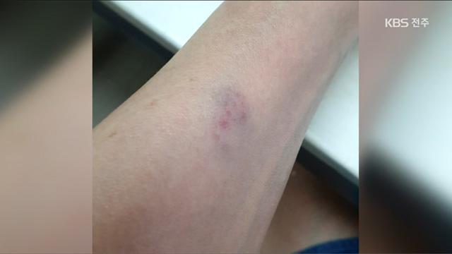 묻지마 의사 폭행…체포된 뒤 다음날 또 난동